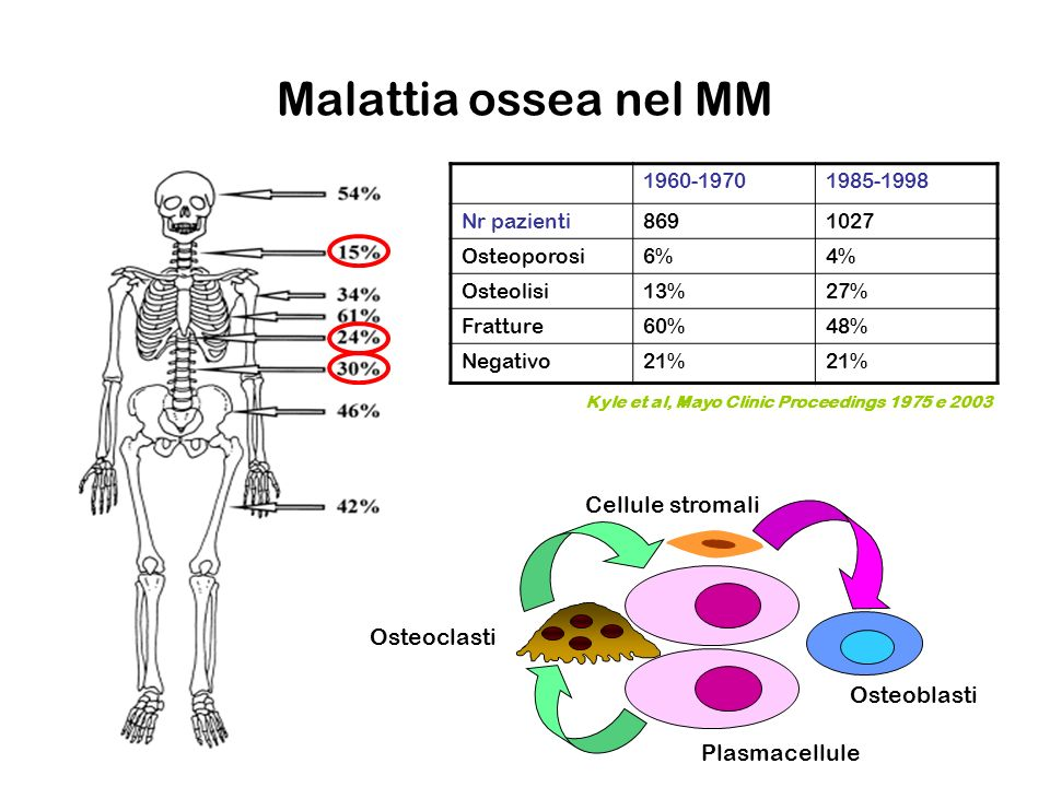 Malattia ossea nel MM Cellule stromali Osteoclasti Osteoblasti