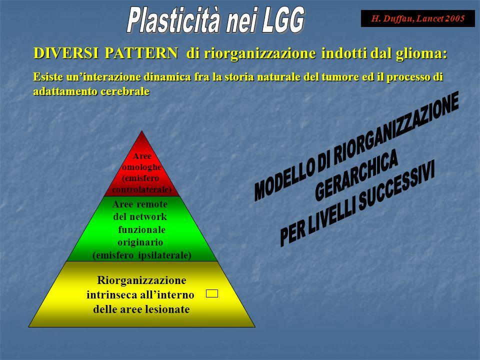 Plasticità nei LGG H. Duffau, Lancet 2005. DIVERSI PATTERN di riorganizzazione indotti dal glioma: