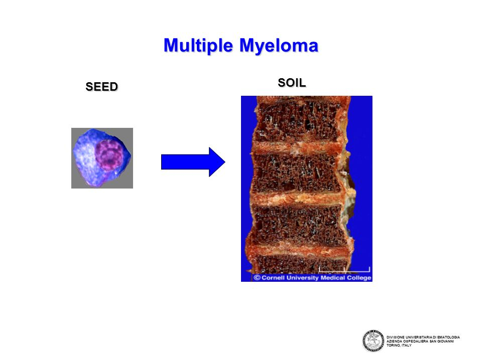 Multiple Myeloma SOIL SEED
