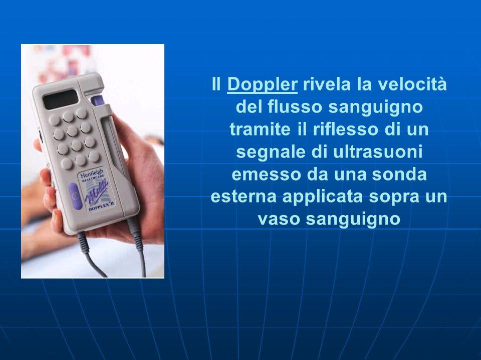 Il Doppler rivela la velocità del flusso sanguigno tramite il riflesso di un segnale di ultrasuoni emesso da una sonda esterna applicata sopra un vaso sanguigno