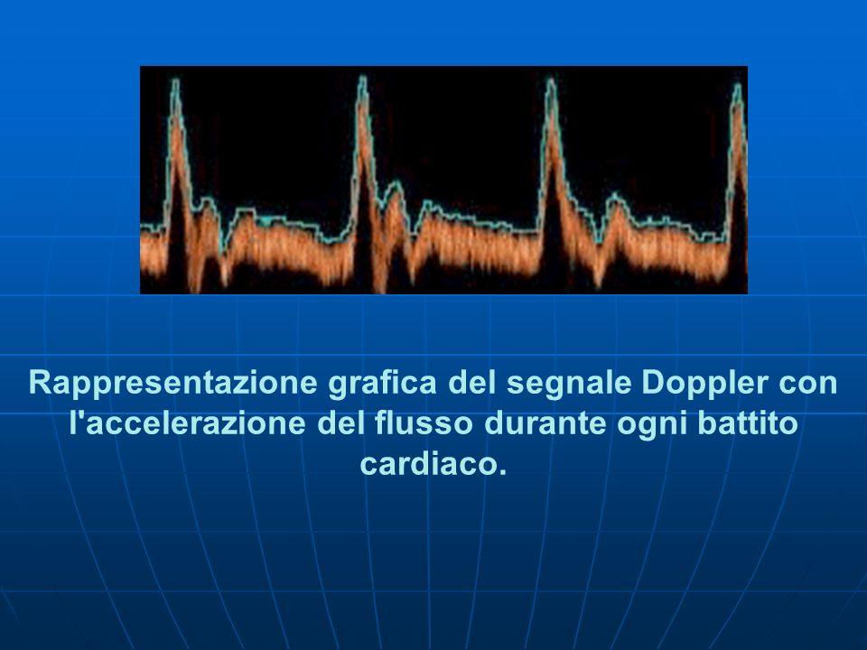 Rappresentazione grafica del segnale Doppler con l accelerazione del flusso durante ogni battito cardiaco.