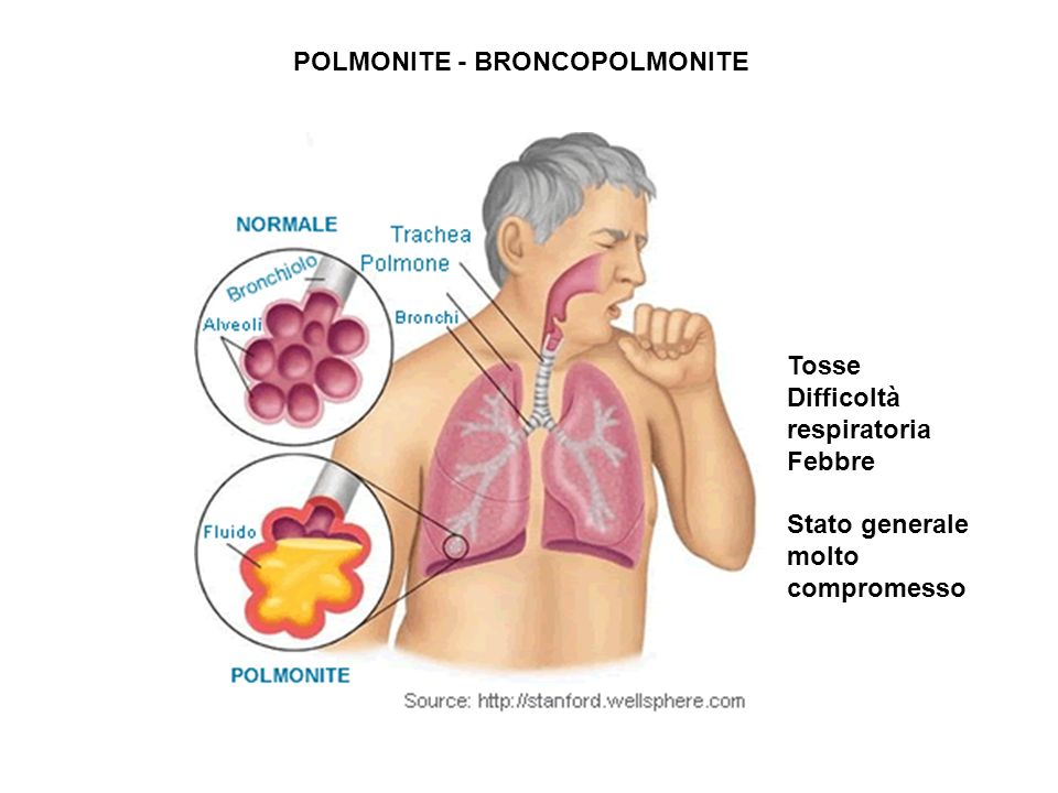 POLMONITE POLMONITE - BRONCOPOLMONITE Tosse Difficoltà respiratoria