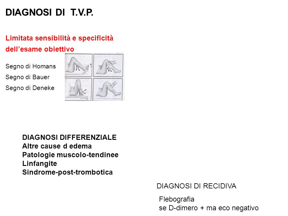 DIAGNOSI DI T.V.P. Limitata sensibilità e specificità