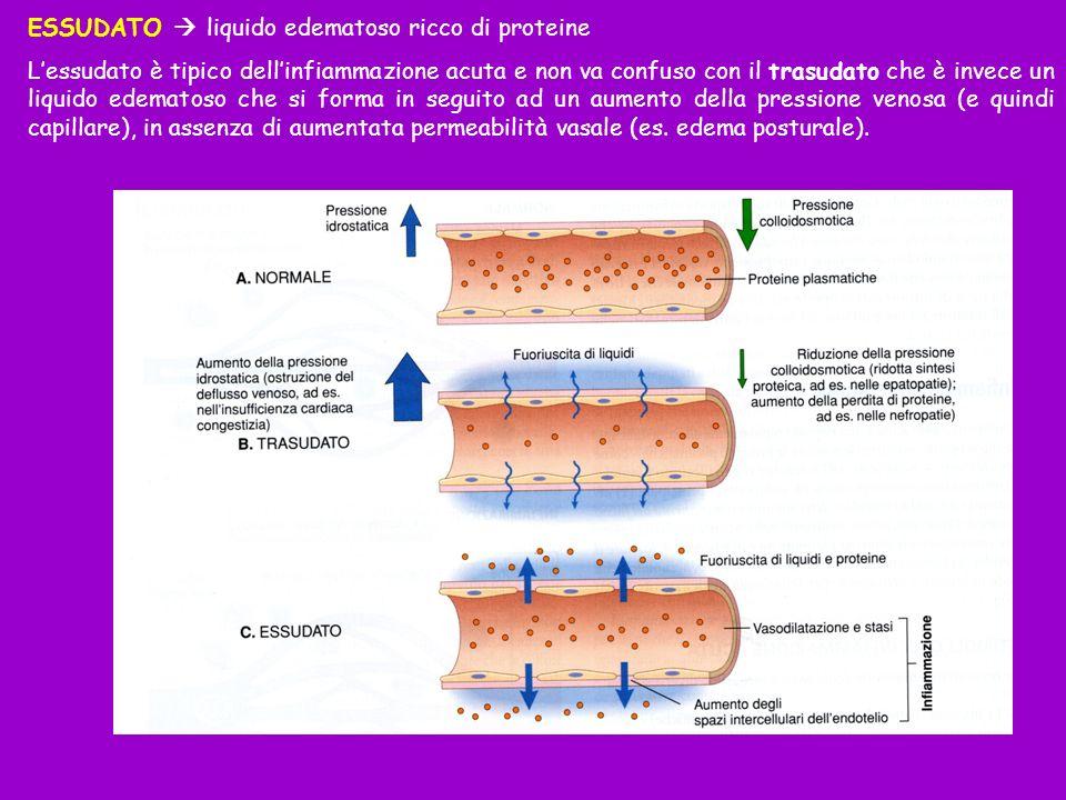 ESSUDATO  liquido edematoso ricco di proteine
