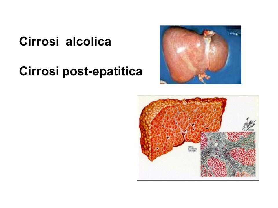 Cirrosi alcolica Cirrosi post-epatitica