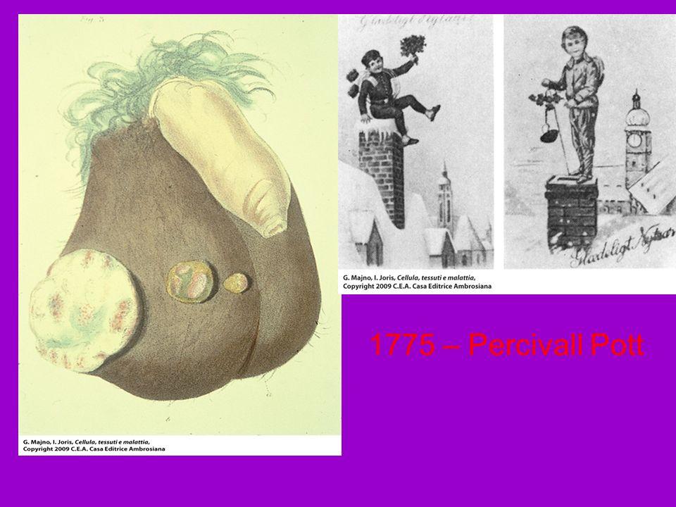 1775 – Percivall Pott