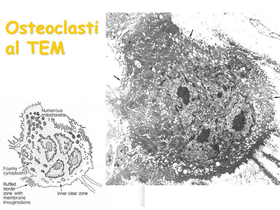 Osteoclasti al TEM