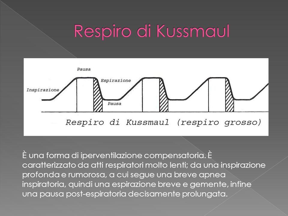 Respiro di Kussmaul