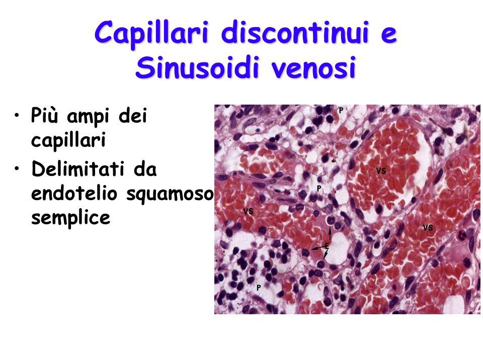 Capillari discontinui e Sinusoidi venosi