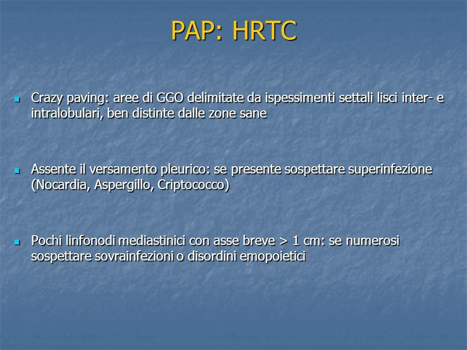 PAP: HRTC Crazy paving: aree di GGO delimitate da ispessimenti settali lisci inter- e intralobulari, ben distinte dalle zone sane.