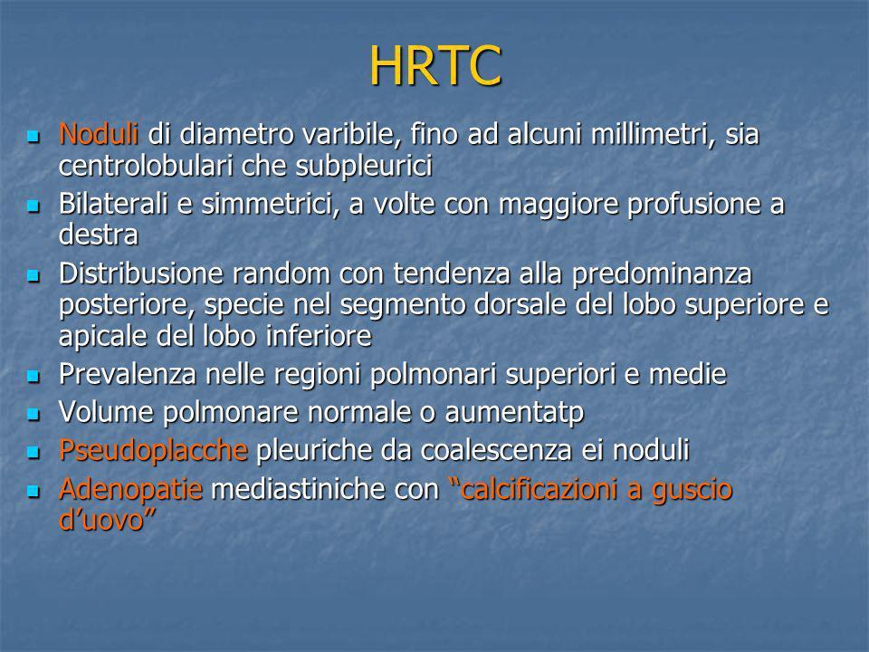 HRTC Noduli di diametro varibile, fino ad alcuni millimetri, sia centrolobulari che subpleurici.