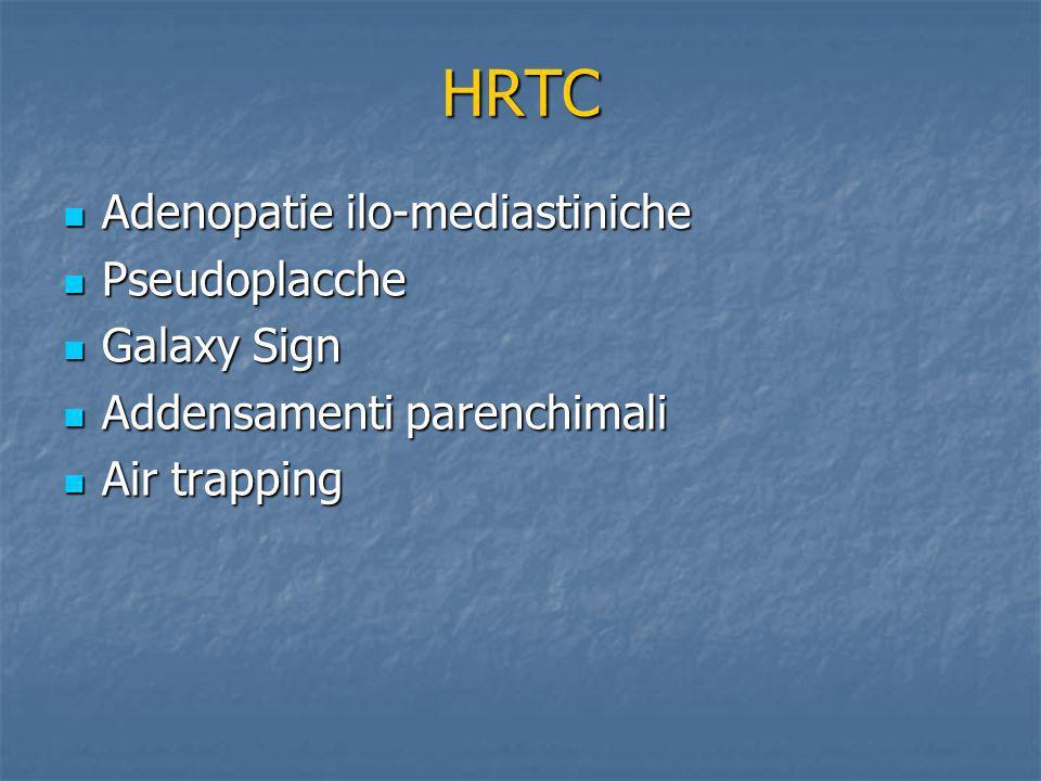HRTC Adenopatie ilo-mediastiniche Pseudoplacche Galaxy Sign
