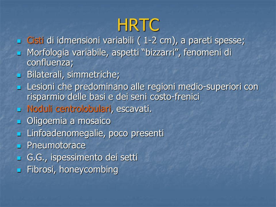 HRTC Cisti di idmensioni variabili ( 1-2 cm), a pareti spesse;
