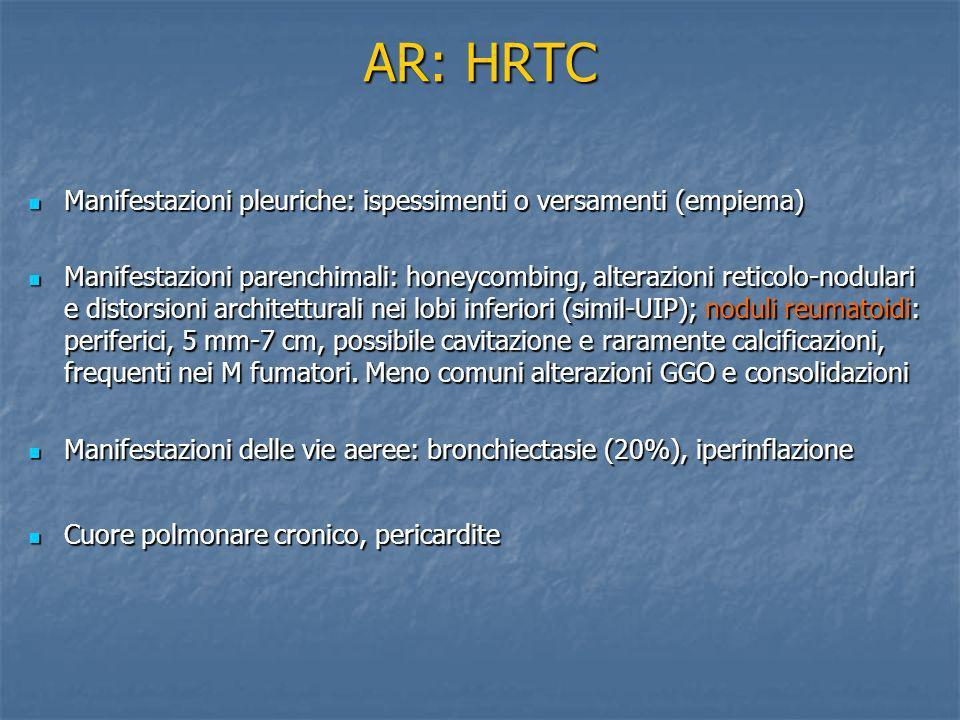 AR: HRTC Manifestazioni pleuriche: ispessimenti o versamenti (empiema)