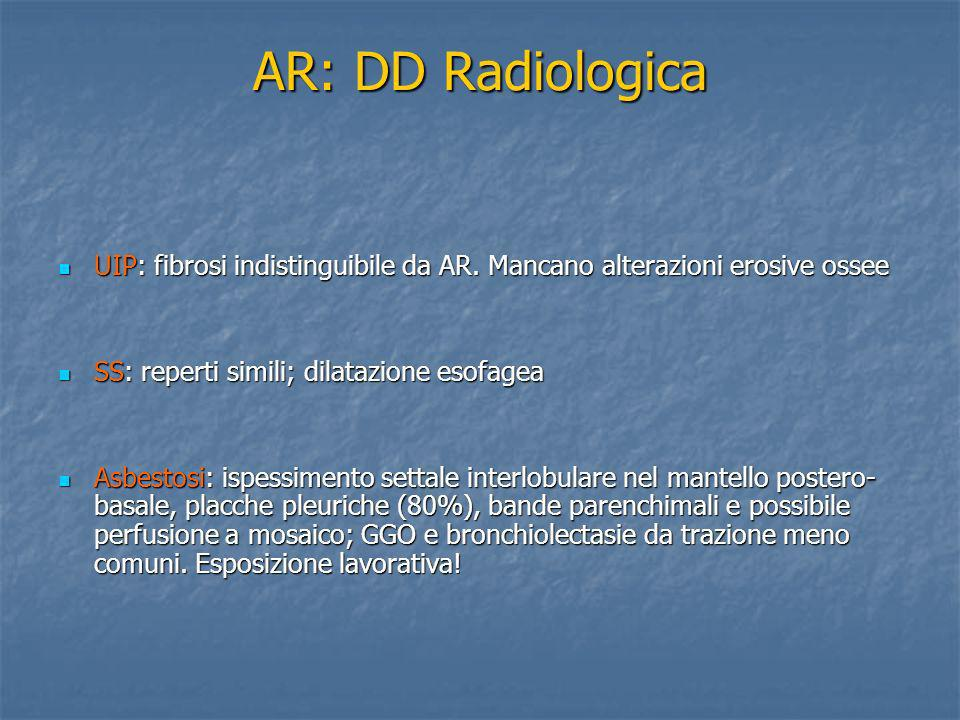 AR: DD Radiologica UIP: fibrosi indistinguibile da AR. Mancano alterazioni erosive ossee. SS: reperti simili; dilatazione esofagea.