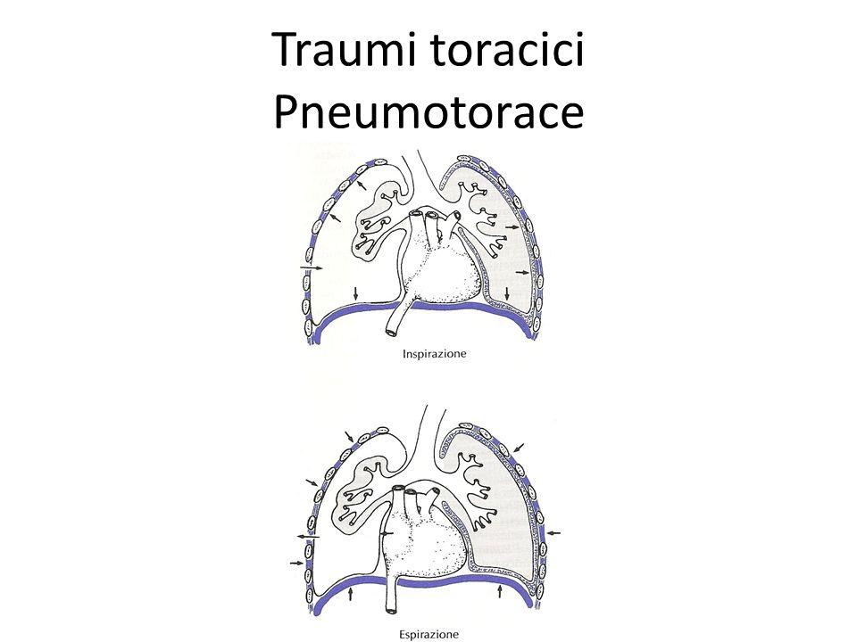 Traumi toracici Pneumotorace