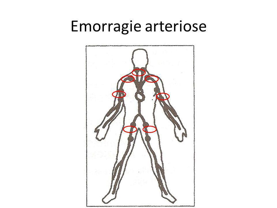 Emorragie arteriose