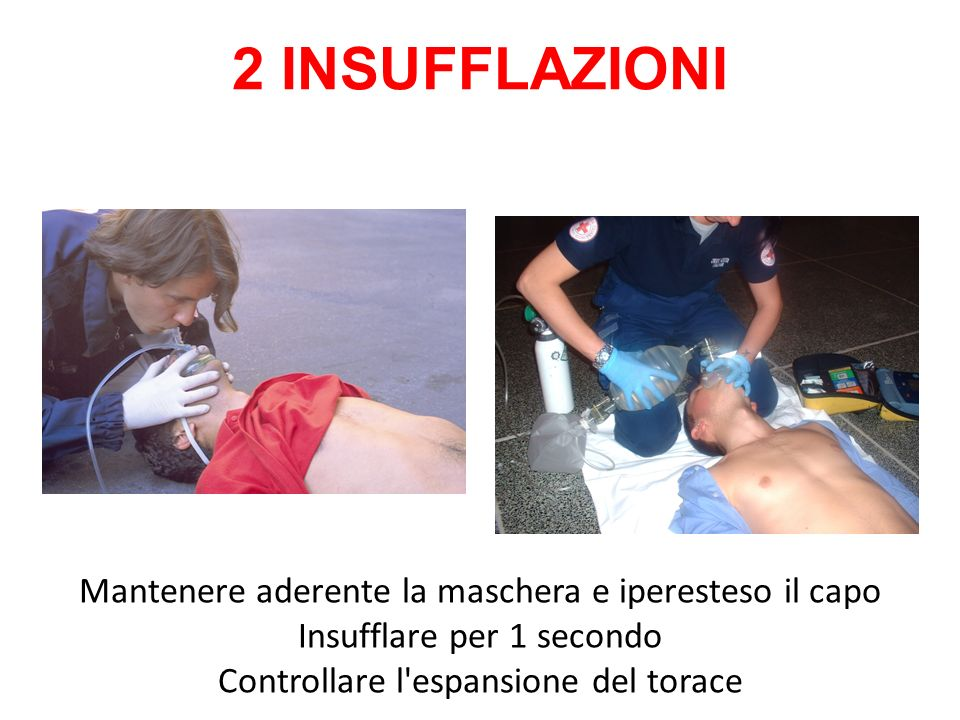 2 INSUFFLAZIONI Mantenere aderente la maschera e iperesteso il capo Insufflare per 1 secondo Controllare l espansione del torace.