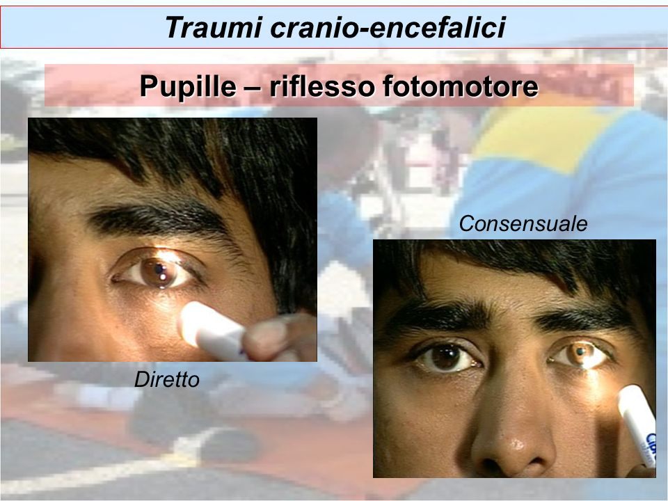 Pupille – riflesso fotomotore