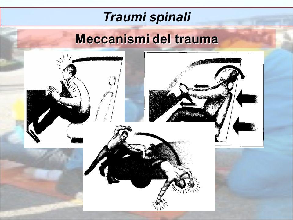 Traumi spinali Meccanismi del trauma