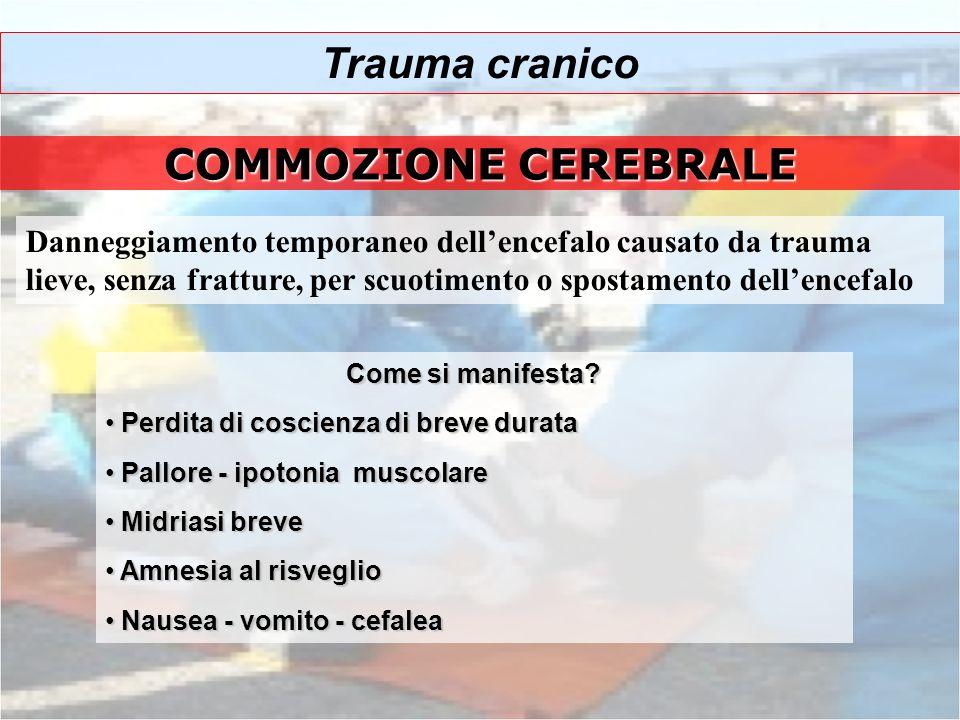 Trauma cranico COMMOZIONE CEREBRALE