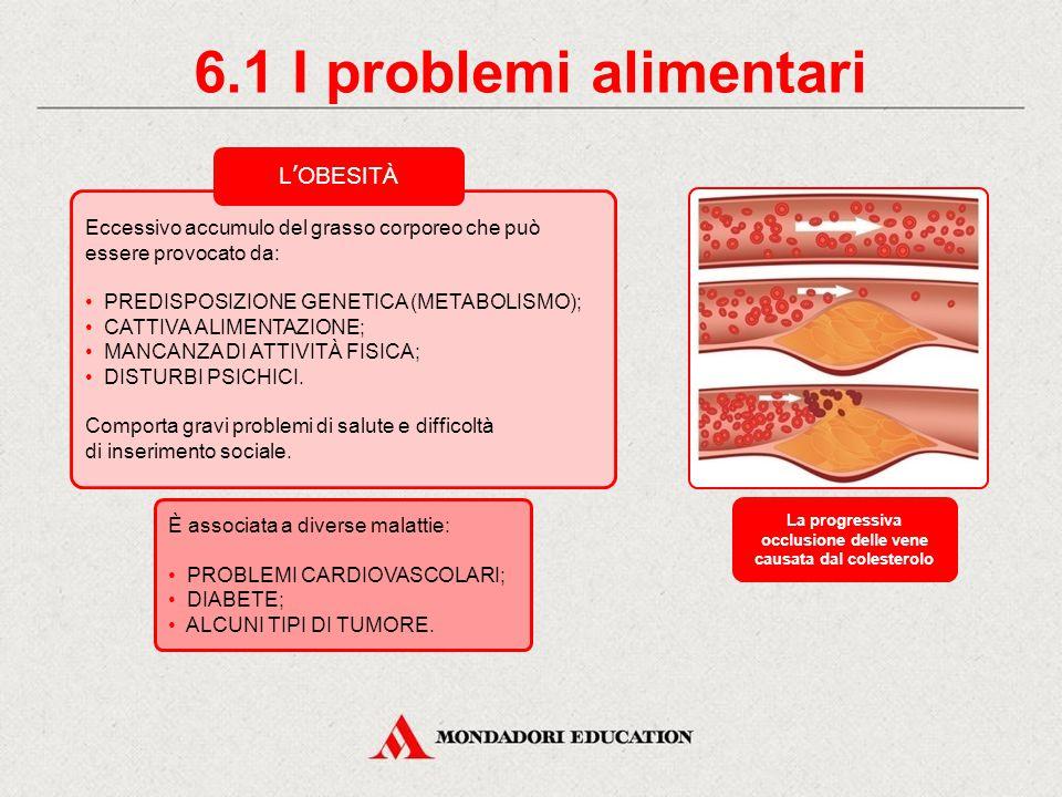 La progressiva occlusione delle vene causata dal colesterolo