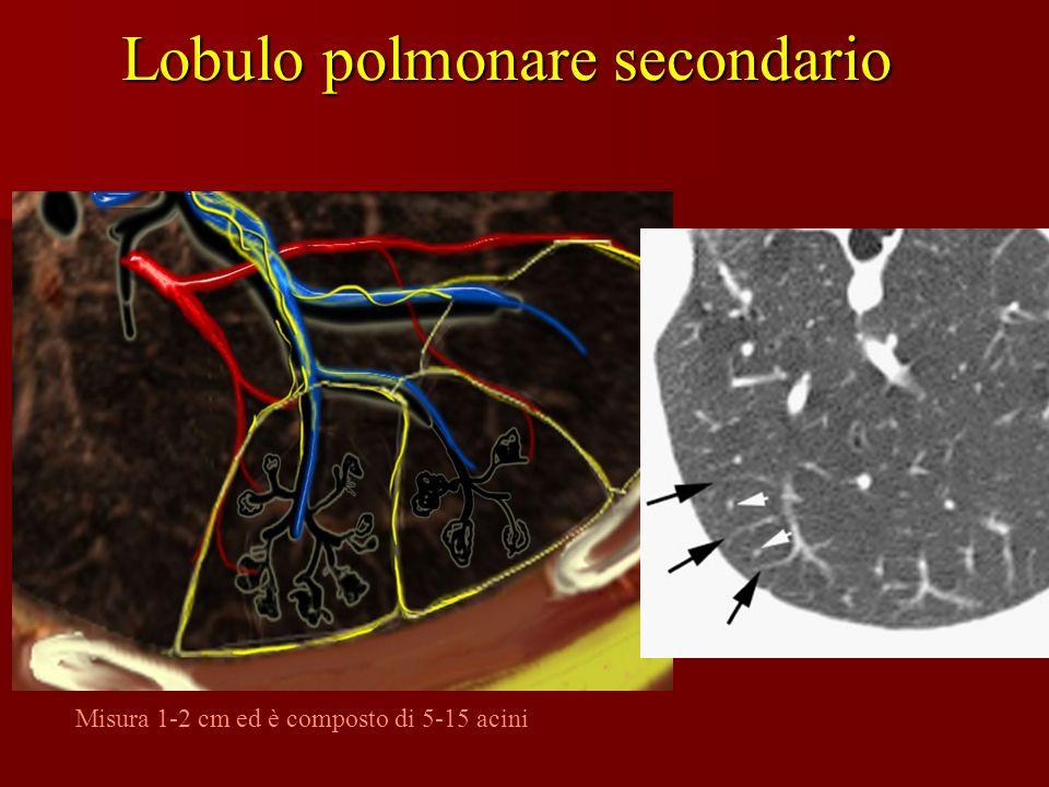 Lobulo polmonare secondario