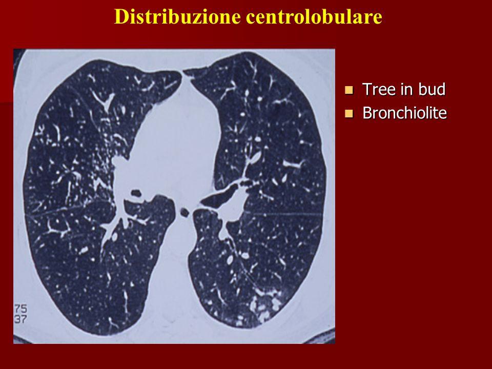 Distribuzione centrolobulare