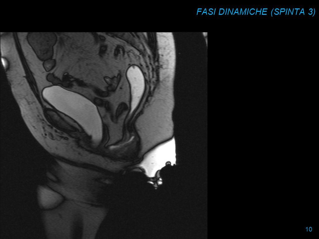 FASI DINAMICHE (SPINTA 3)