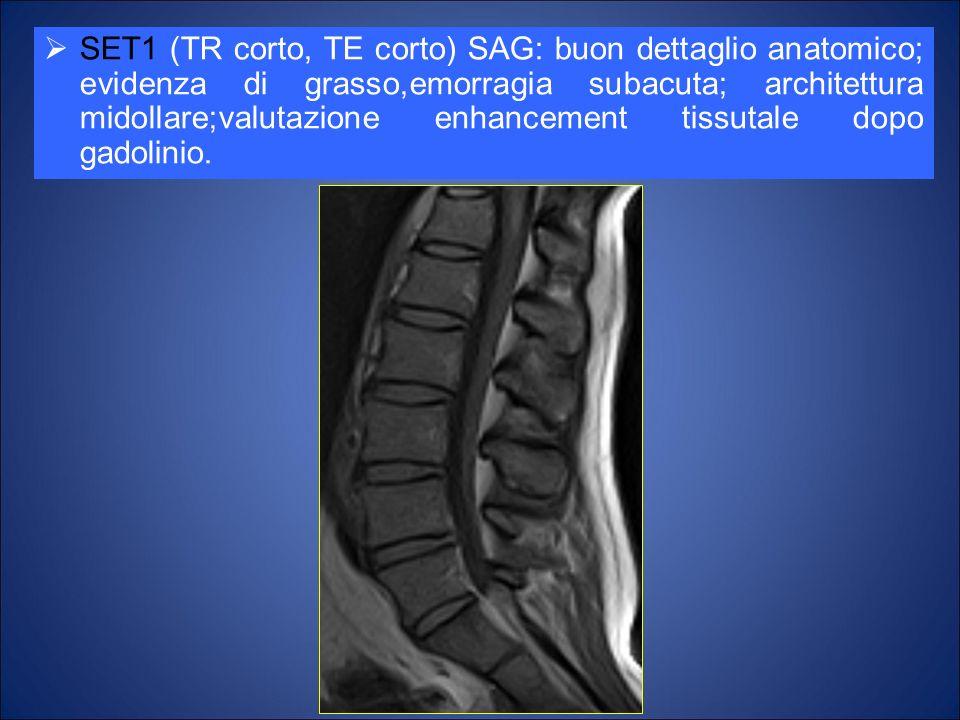 SET1 (TR corto, TE corto) SAG: buon dettaglio anatomico; evidenza di grasso,emorragia subacuta; architettura midollare;valutazione enhancement tissutale dopo gadolinio.