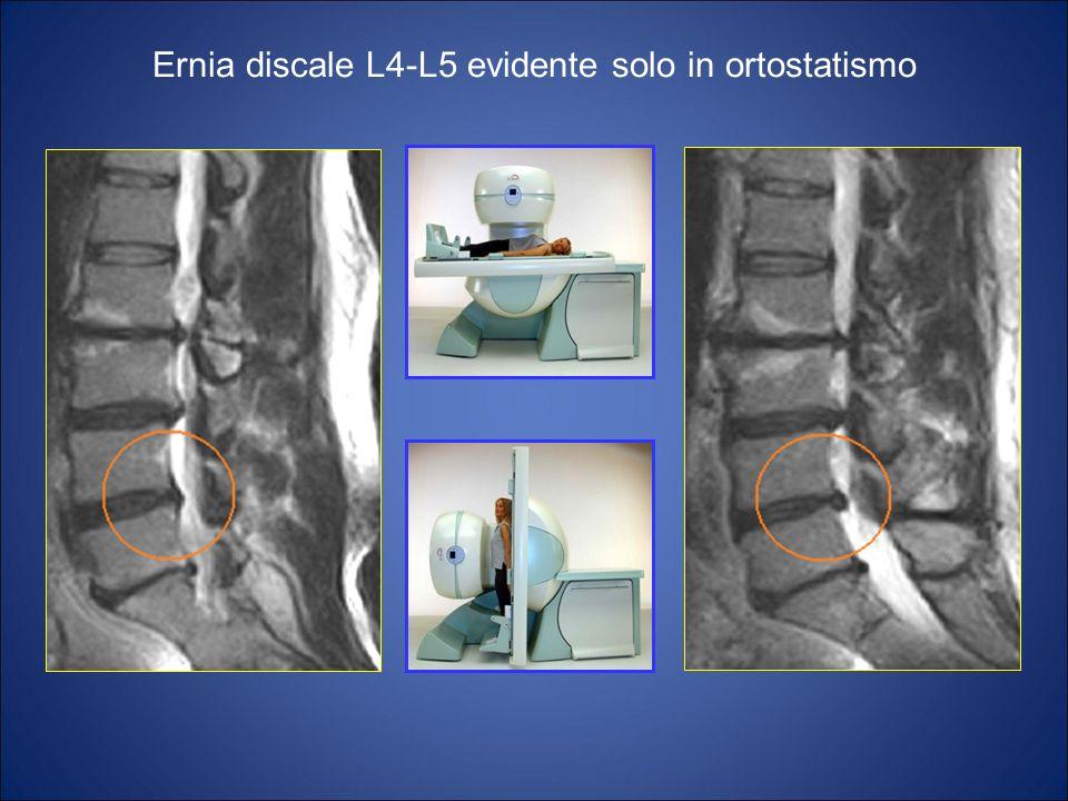 Ernia discale L4-L5 evidente solo in ortostatismo