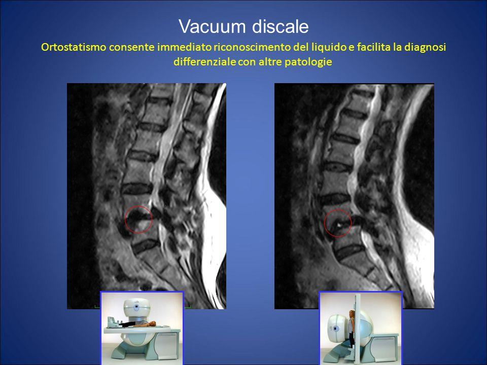 Vacuum discale Ortostatismo consente immediato riconoscimento del liquido e facilita la diagnosi differenziale con altre patologie.