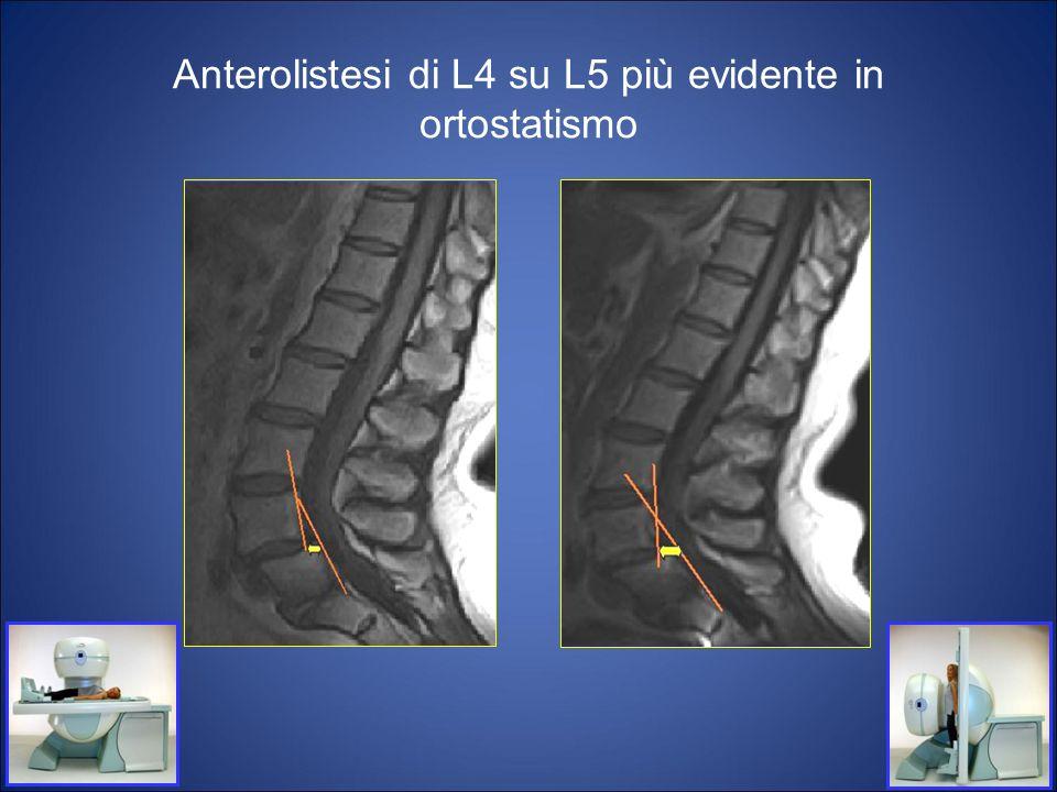 Anterolistesi di L4 su L5 più evidente in ortostatismo