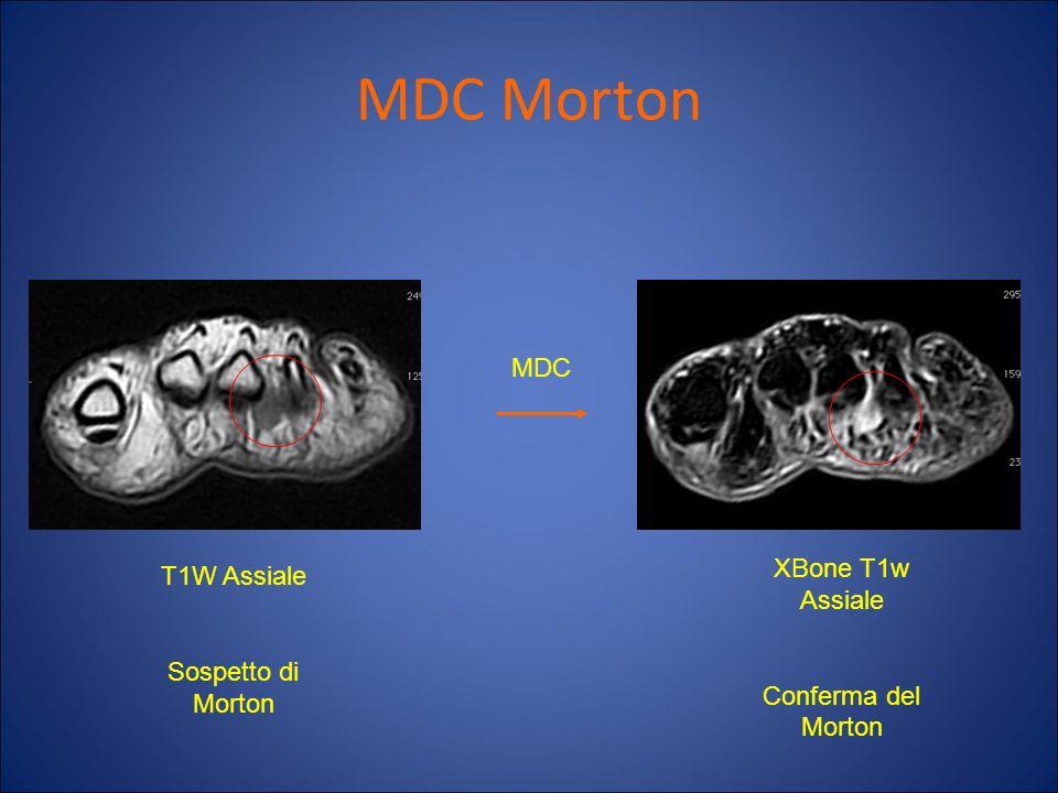 MDC Morton MDC XBone T1w Assiale T1W Assiale Sospetto di Morton