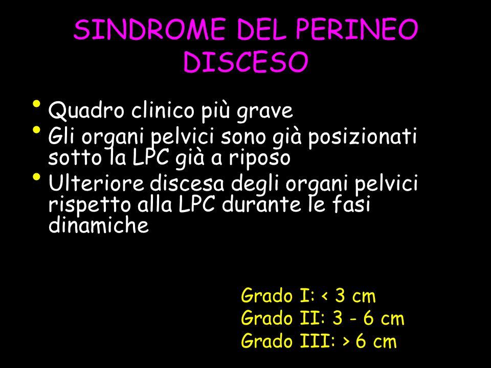 SINDROME DEL PERINEO DISCESO