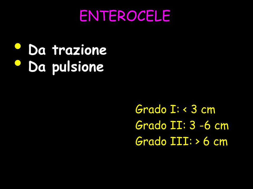 ENTEROCELE Da trazione Da pulsione Grado I: < 3 cm