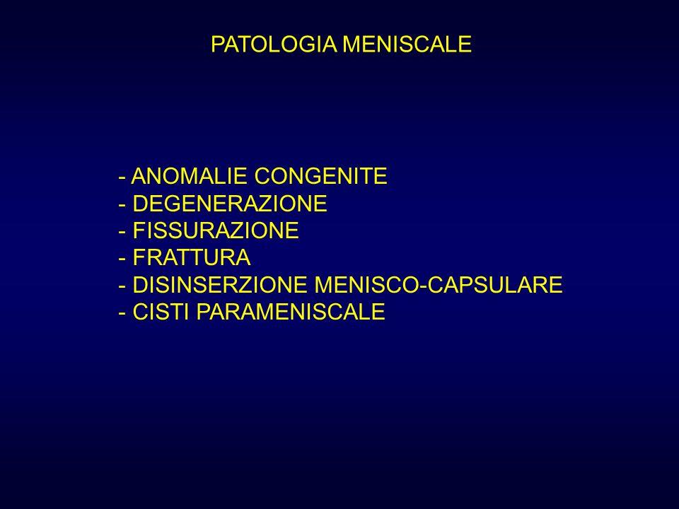 PATOLOGIA MENISCALEANOMALIE CONGENITE. DEGENERAZIONE. FISSURAZIONE. FRATTURA. DISINSERZIONE MENISCO-CAPSULARE.