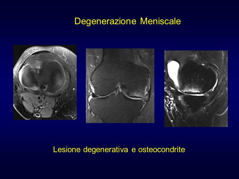 Lesione degenerativa e osteocondrite