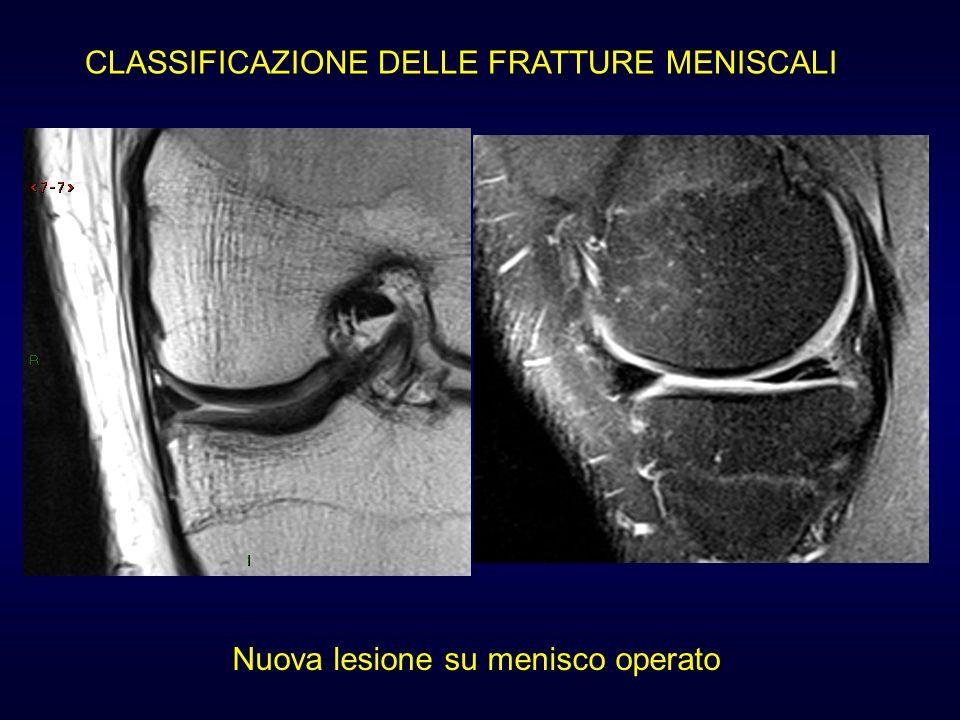 Nuova lesione su menisco operato