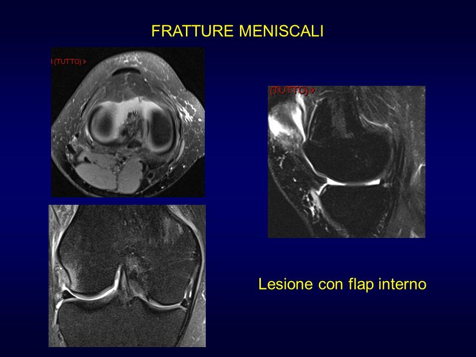 Lesione con flap interno