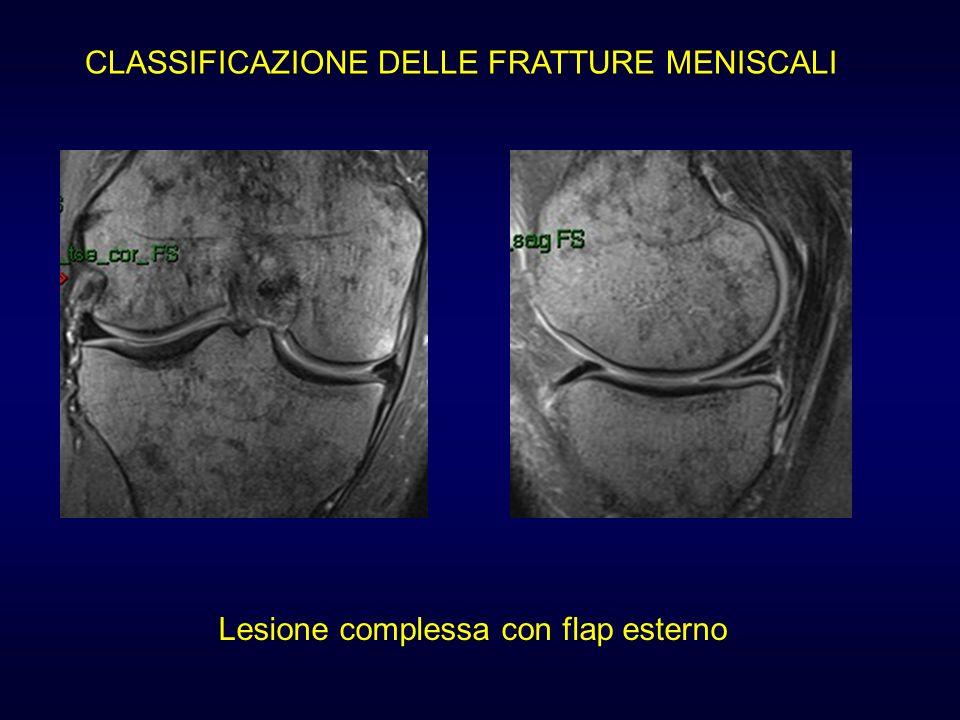 Lesione complessa con flap esterno