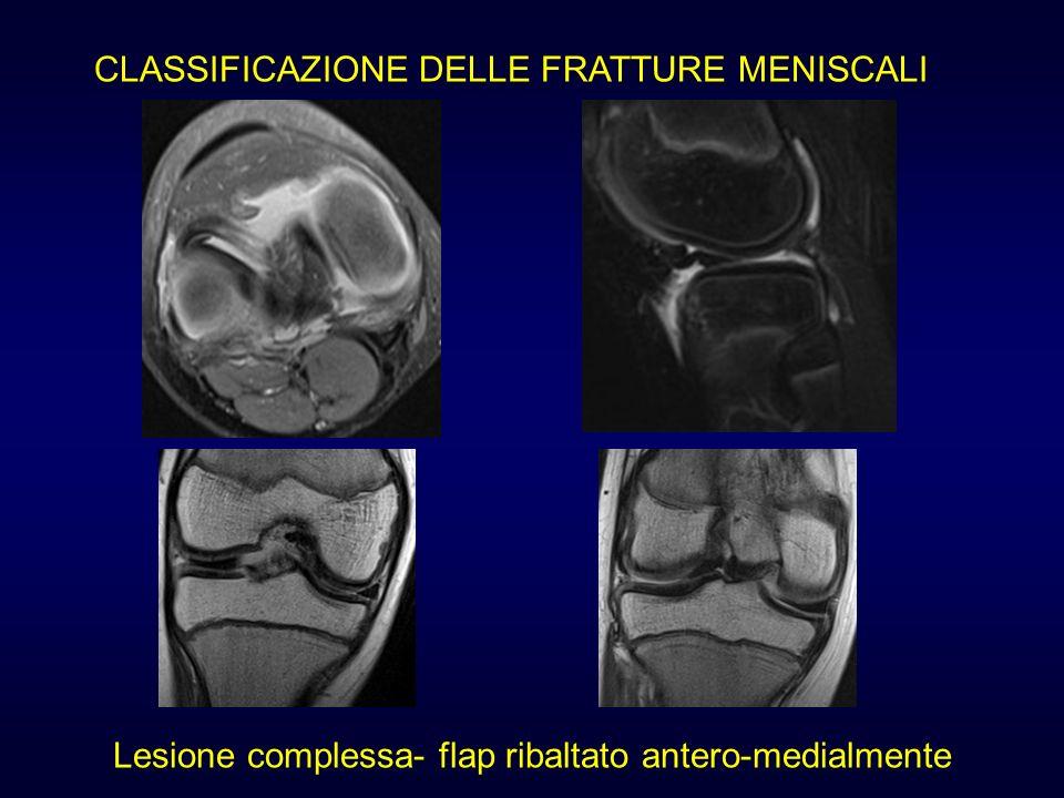 Lesione complessa- flap ribaltato antero-medialmente