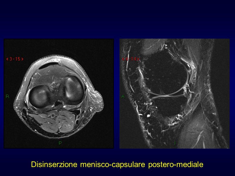 Disinserzione menisco-capsulare postero-mediale