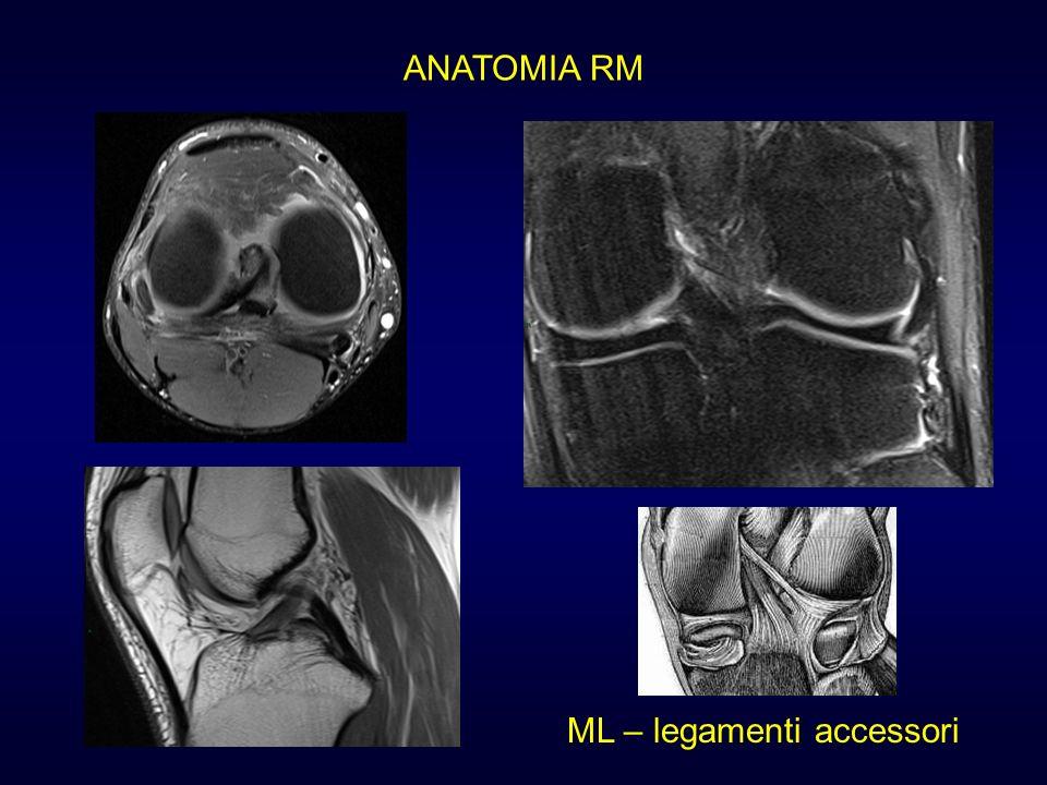 ANATOMIA RM ML – legamenti accessori