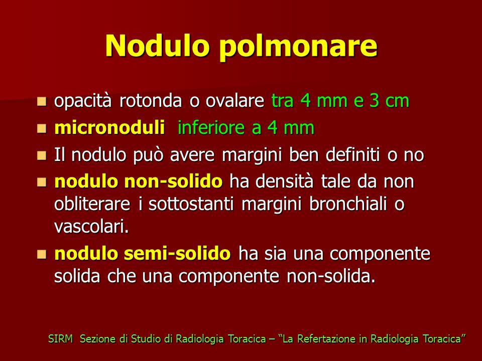 Nodulo polmonare opacità rotonda o ovalare tra 4 mm e 3 cm