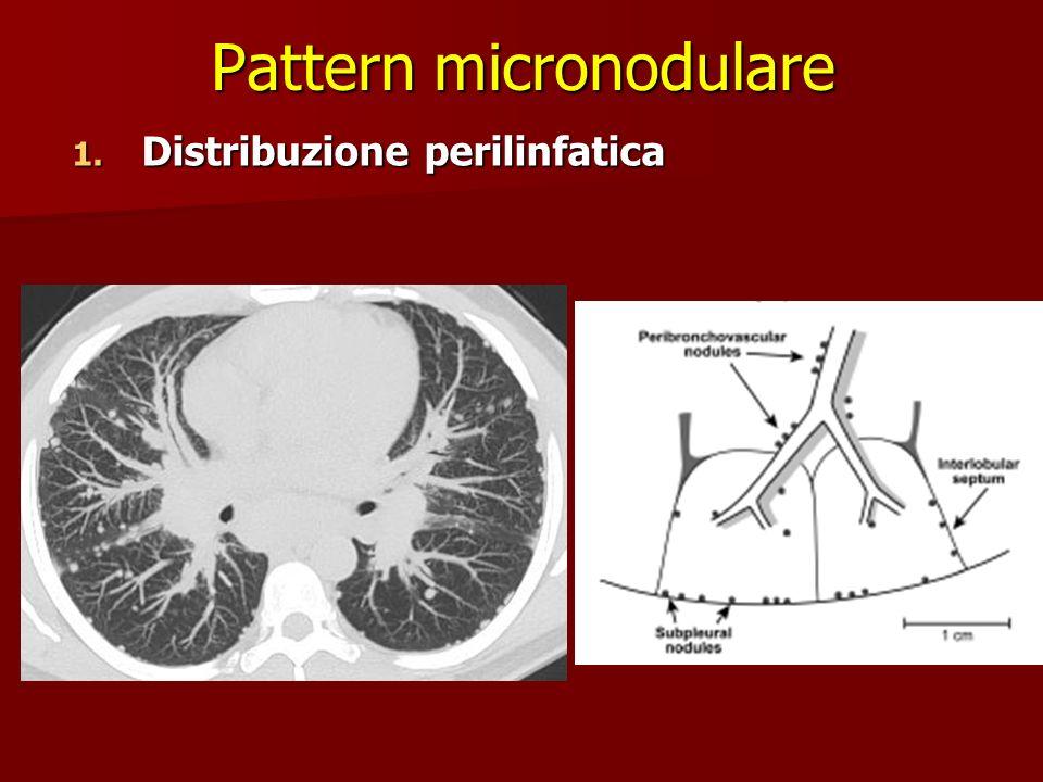 Pattern micronodulare