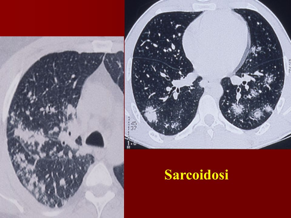 Sarcoidosi