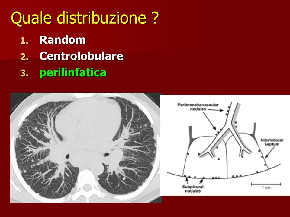Quale distribuzione Random Centrolobulare perilinfatica
