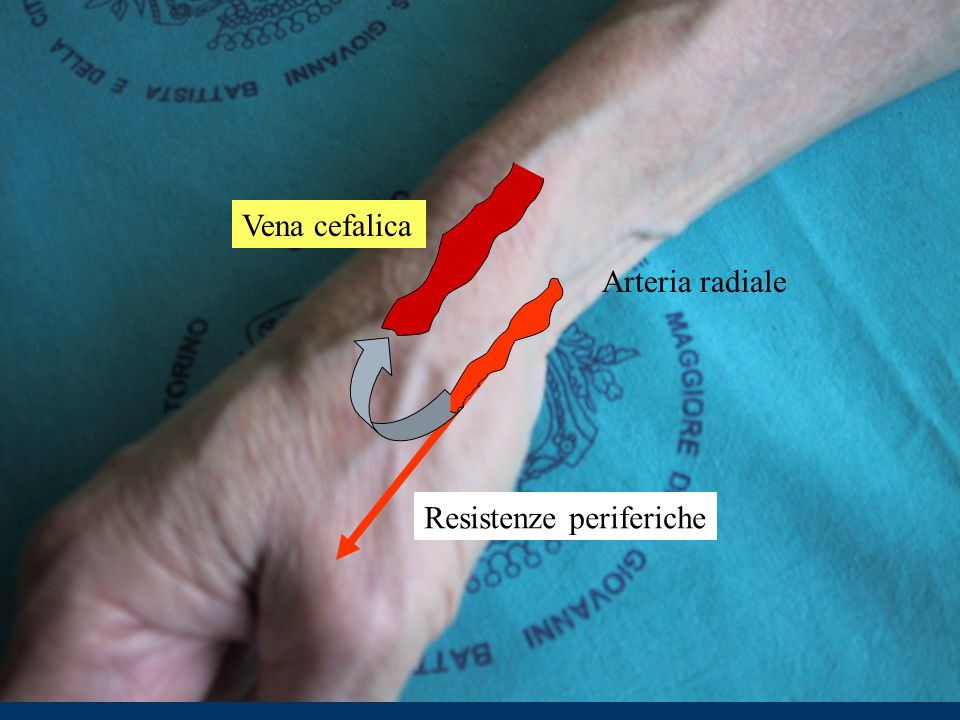 Vena cefalica Arteria radiale Resistenze periferiche