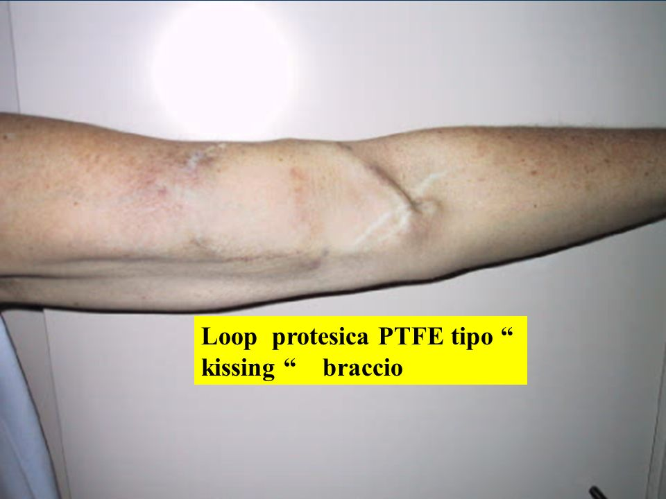 Loop protesica PTFE tipo kissing braccio